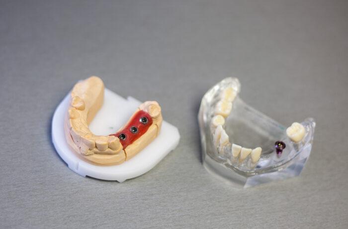 Protetika (zubní náhrady)