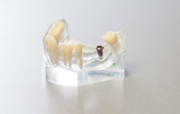 Zubní implantáty